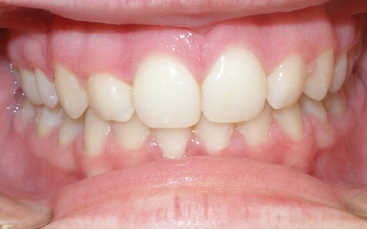 Carrlee Campbell - Final - Intraoral anterior