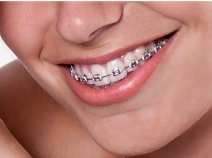 braces-poole-orthodontics