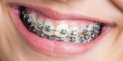 types-of-braces